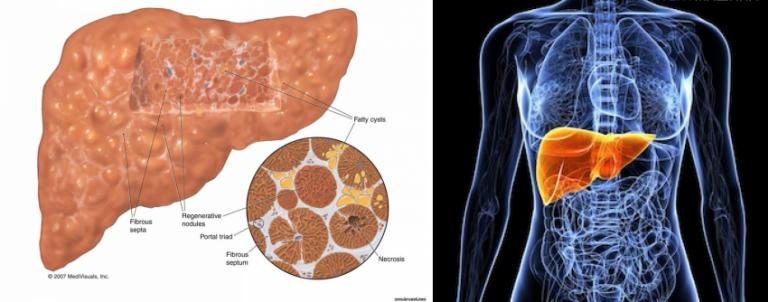 глицин помогает при болезнях печени