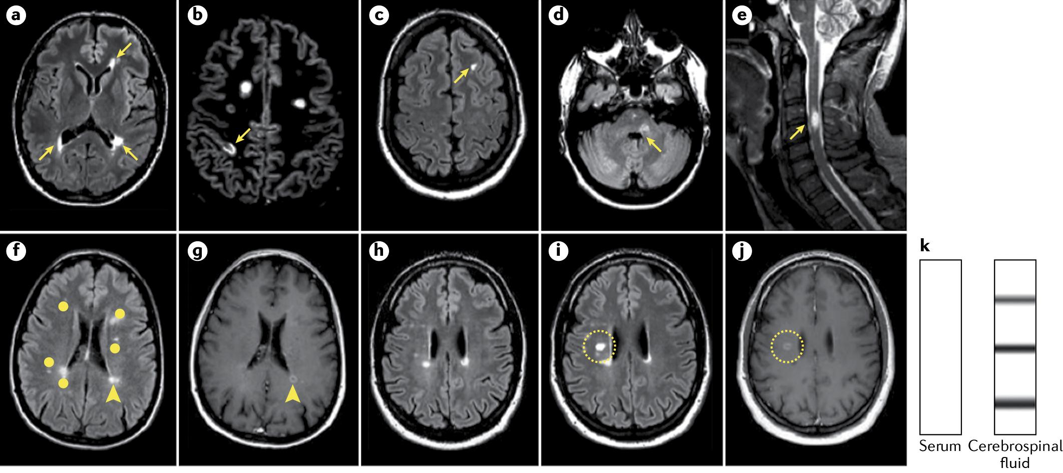 Рассеянный склероз - диагностика и лечение