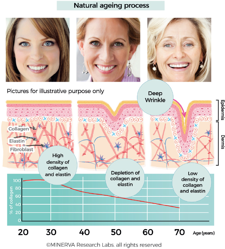 Skin collagen through the lifestages: importance for skin health and beauty
